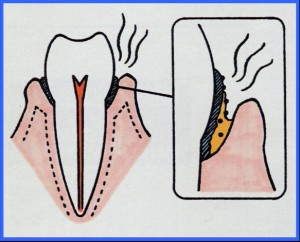 口臭歯周病