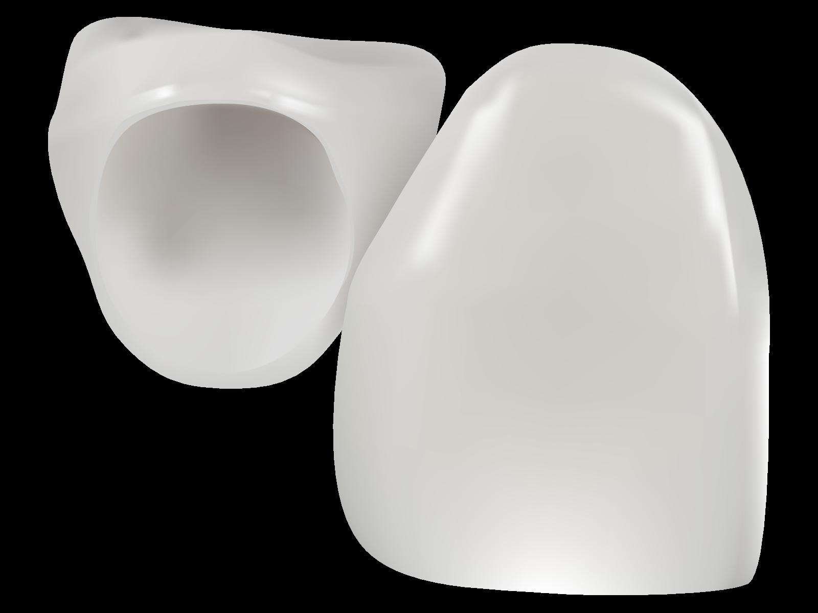 「審美歯科 画像」の画像検索結果